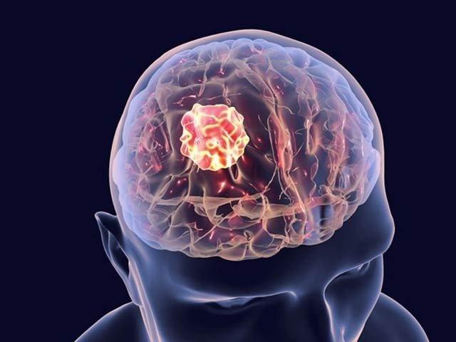 brain_1624103022.jpg